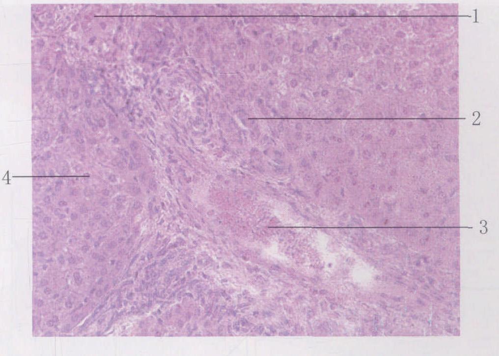 1.小叶间动脉 2.小叶间胆管 3.小叶间静脉 4.肝小叶图片